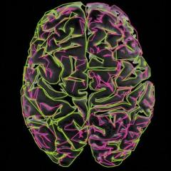 Live-wired brain, B0003256 Credit Heidi Cartwright, Wellcome Images